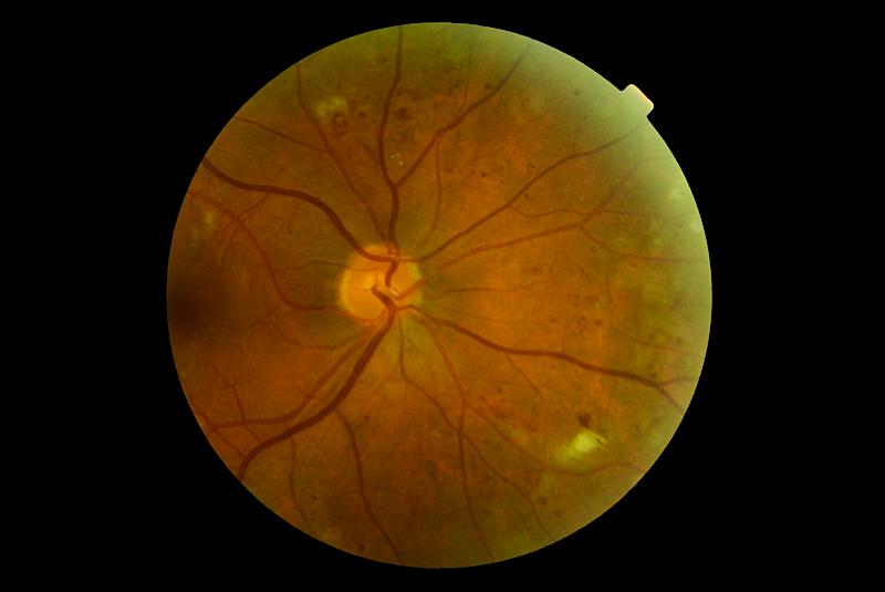 Notre expertise - Service d'Ophtalmologie Hôpital Lariboisière